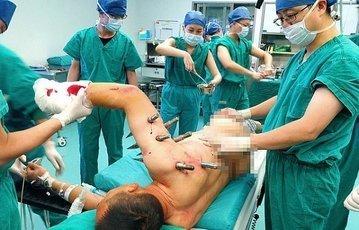 Врачи спасли мужчину, вынув из его тела десять металлических кольев