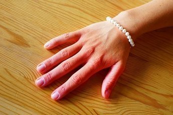 Искусственный интеллект определяет анемию по цвету ногтей