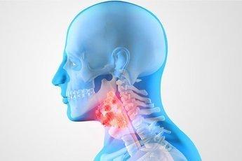 Врачи рассказали о причинах развития рака горла