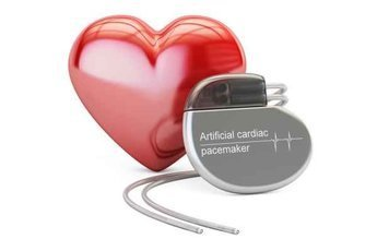 Новый кардиостимулятор работает за счет энергии сердца