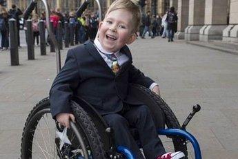 Мальчик, родившийся без мозга, успешно отрастил его к 6 годам