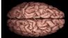 Занимайся сексом - береги мозги