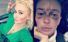 Укол косметолога лишил москвичку половину зрения