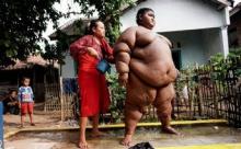 Мальчик из Индонезии похудел на 100 килограммов