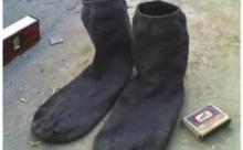 Китайца госпитализировали после того, как он понюхал свои носки